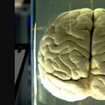 Tömegsírból előkerült, elszappanosodott agyakat vizsgálnak spanyol kutatók
