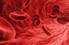 Új találmány a mesterséges vér, bármilyen vércsoportú ember kaphatja