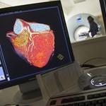 Szívvizsgálati anomáliák: Jobb? Olcsóbb? Nem kell!