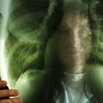 Újabb tbc-s egyetemistát kezelnek Pécsen