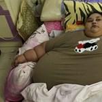 A világ egykor legkövérebb nője majdnem 400 kilót fogyott eddig