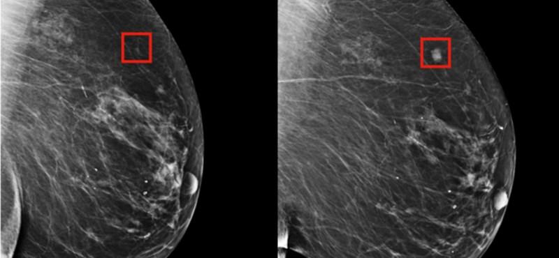 Olyan nanorészecskéket fejlesztenek kínaiak, ami gyógyíthatja a mellrákot