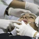 Feltétlenül olvassa el a NAV intelmeit, ha plasztikai műtétre készül!