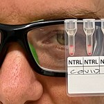 A vírusfertőzést 20 perc alatt kimutató tesztet készítettek ausztrál tudósok