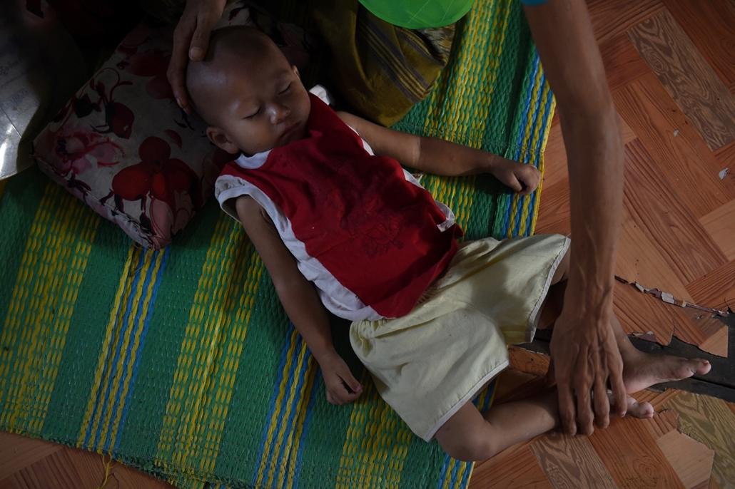 afp.16.12.01. - Rangun, Mianmar: HIV-pozitív kisfiú a mianmari Rangunban 2016 decemberében. - aids világnap nagyítás