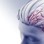 Különös fejsérülése miatt kétóránként törlődik egy amerikai tini memóriája