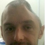 Új külsőt kapott a behorpadt fejű férfi – fotó