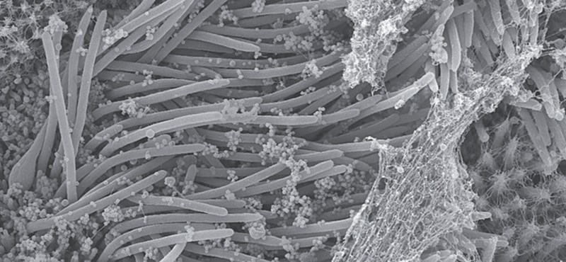 Szörnyű képek jöttek arról, hogyan roncsolja a tüdőt a koronavírus