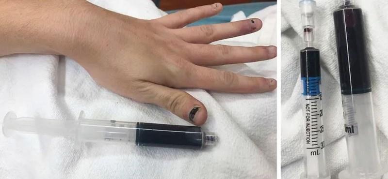 Kékké változott egy nő vére a sok bevett fájdalomcsillapítótól
