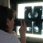 A fejlett országok közül Magyarországon halnak meg legtöbben rákban