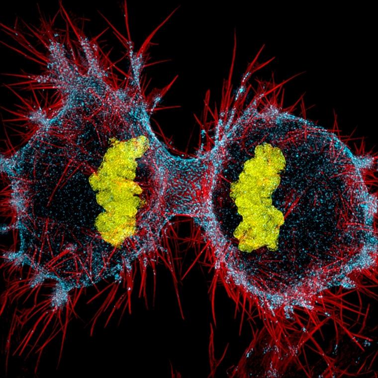 NE használd_! - Nikon Small World 2016 - 12. helyezett: A HeLa sejt osztódása (citokinezis). Sárga: DNS, kék: Miozin II, piros: Aktin hatvanszoros nagyításban.