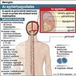 Fertőző agyhártyagyulladással vittek kórházba egy corvinusos hallgatót
