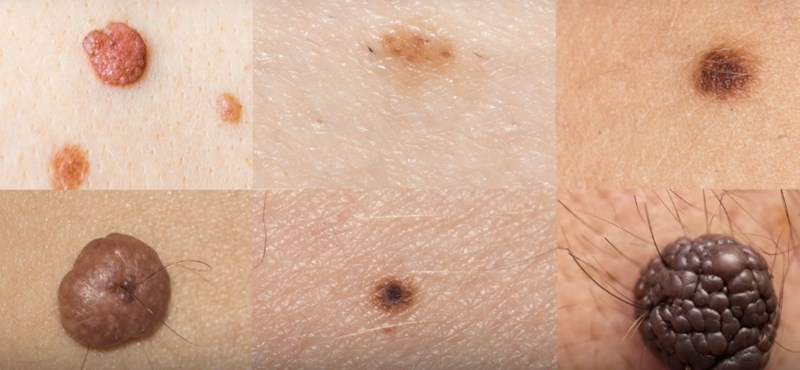 Artificial intelligence is being used against skin cancer, as the Hungarians have boarded