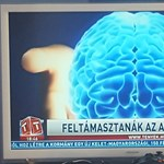 """""""Felélesztik az agyhalottakat!"""" – A Tv2 Tények folytatja a tudományos ismeretterjesztést"""