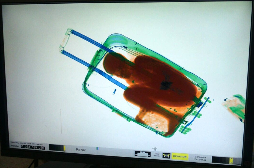 afp.15.05.08. - Ceuta, Spanyolország: Röntgenképen egy bőröndben utazó nyolc éves gyermekről. - évképei