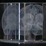 Holnap indul a nagy kísérlet: átprogramozott sejteket ültetnek az agyba, így nulláznák le a Parkinson-kórt