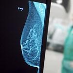 Kisebb eséllyel alakul ki mellrák a korán kelő nőknél