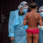 Brazíliában meghaladta a hárommilliót a fertőzöttek és a százezret az elhunytak száma