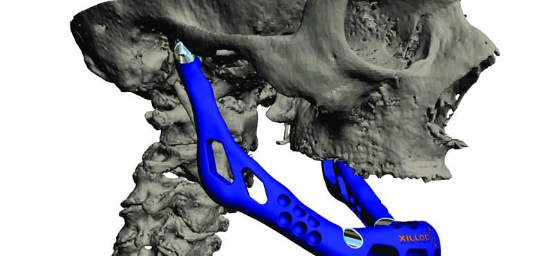 Csokitorta, ékszer és emberi szív a 3D-nyomtatóból