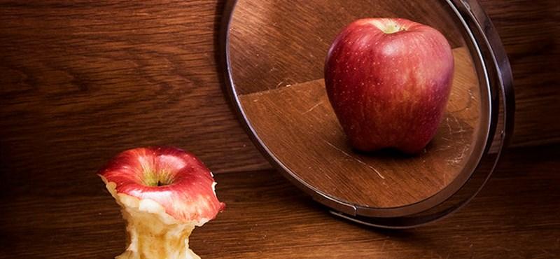 """""""Félek, hogy sosem tudok majd bűntudat nélkül enni"""" – az anorexia csapdájában"""