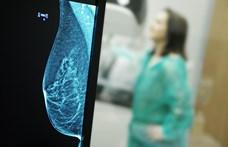 A rendszeres sport növeli a mellrákos páciensek túlélési esélyeit