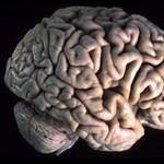 Megtalálták a gyanakvásért felelős agyi területeket