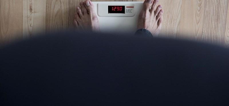 Kétszer jobban növeli a rák kockázatát az elhízás, mint eddig gondoltuk