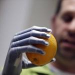 Fotó: iPhone-nal irányítja műkezét egy férfi
