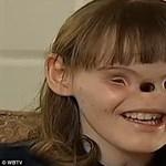 Műtétre vár az orr és szemek nélkül született lány - felkavaró fotó
