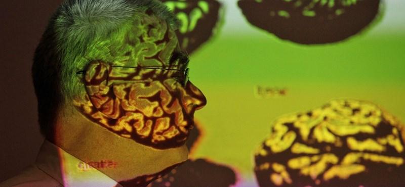 Kiosztották az Agy-díjat: ezek a tudósok már kezdik kapiskálni, mi okozza a demenciát