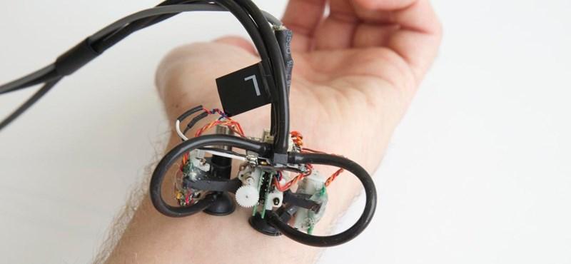 Aki hagyja, hogy végigtapogassa ez a kis robot, annál felismerheti a bőrrákot
