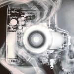 Röntgenkép röntgensugár nélkül
