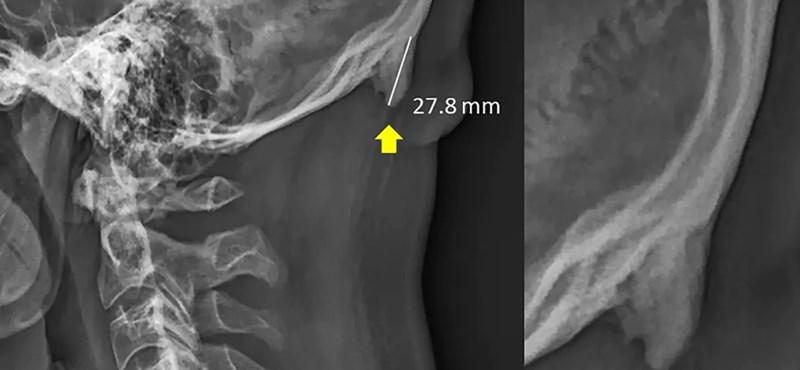 Rászóltak a tudósokra, hogy javítsák ki a tanulmányt, amely szerint szarvunk nőhet a sok mobilozás miatt
