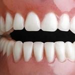 Van egy fogbetegség, amit nemsokára oltással lehet megelőzni