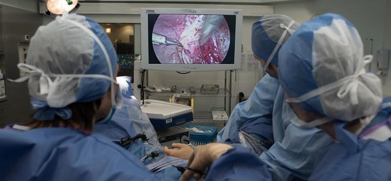 Azt hitte, a menopauza miatt hízik, aztán kioperáltak belőle egy húszkilós tumort