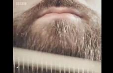 Több baktériumot rejt a férfiak szakálla, mint a kutyák szőre