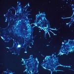 Csak óvatosan: durva hátulütője lehet az új orvosi csodagyógymódnak kikáltott CRISPR-módszernek