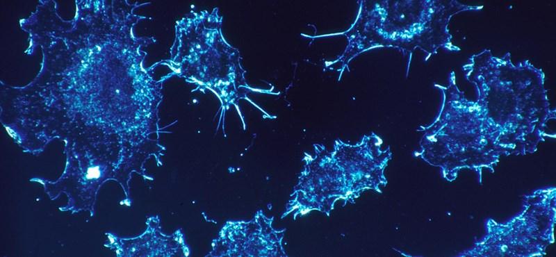 Izraeli kutatóknak sikerült megállítaniuk a rák terjedését