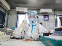 Járványadatok: 123 halott, 4668 fertőzött